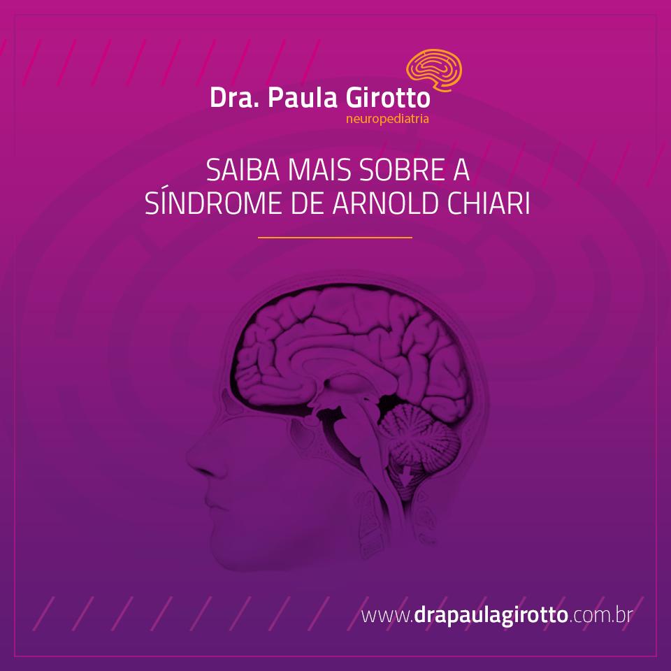 Síndrome de Arnold Chiari