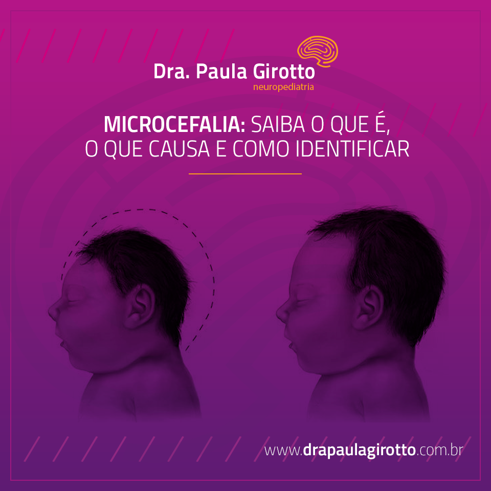 Microcefalia: Saiba o que é, o que causa e como identificar