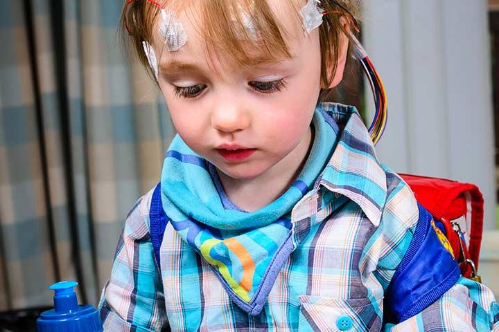 Epilepsia Infantil Tratamento em SP