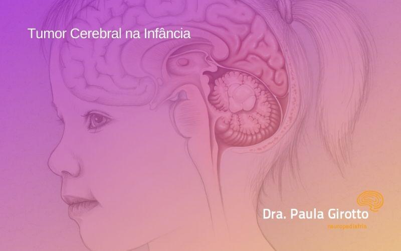 Tumor Cerebral na Infância – Quando Suspeitar? Como Tratar?